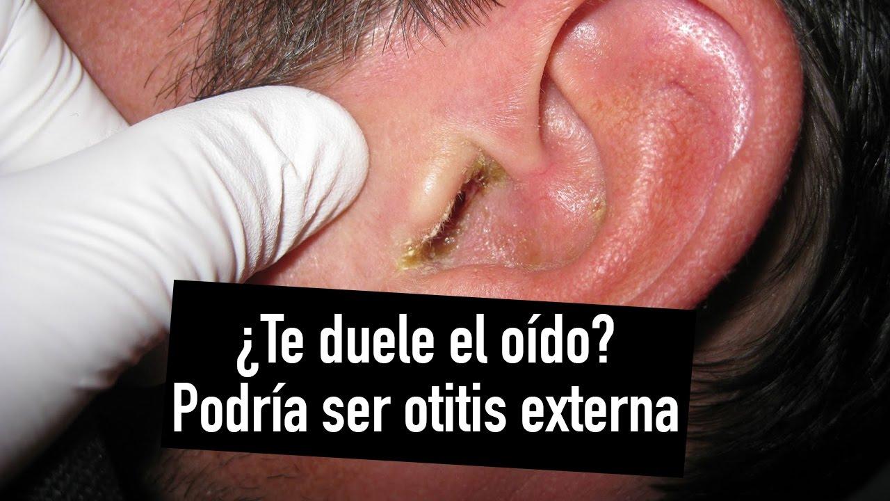 qué puedo hacer si me duele el oído