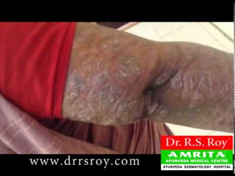 Psoriasis can cure by ayurveda 1