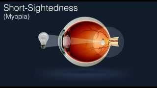Laser Eye Surgery Corrects Myopia (Short-Sightedness) - www.optilase.co.uk