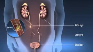 Ureteroscopy (urs)