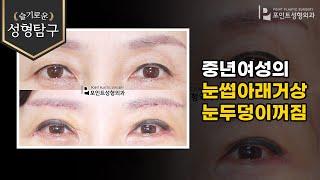 중년여성의 눈썹아래거상과 눈두덩이꺼짐