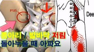 좌골신경통 환자는 무조건 봐야하는 영상, 종아리 발바닥…