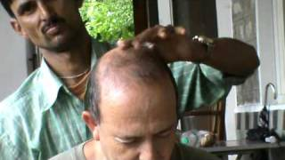 Head Massage in India 2010 עיסוי ראש בהודו
