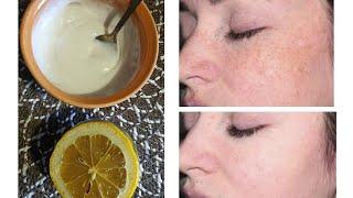 Простой рецепт маски для лица Три обычных ингредиента для сияющей кожи без пигментных пятен