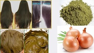 Stop Hair Loss | Henna and Onion Cure Hair Loss and Promote Hair Regrowth | Soft, Shiny, Silky Hair