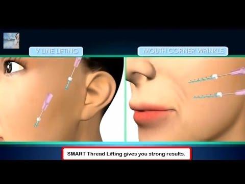 Smart Spiral Thread Lift, Non-Surgical Face Lift