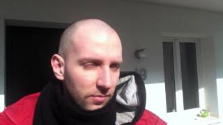Hair Growth Experiment Using Rogaine Minoxidil 5% Day 45
