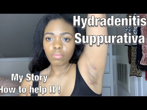 Living With Hydradenitis Suppurativa| How I treat it at home | My Story
