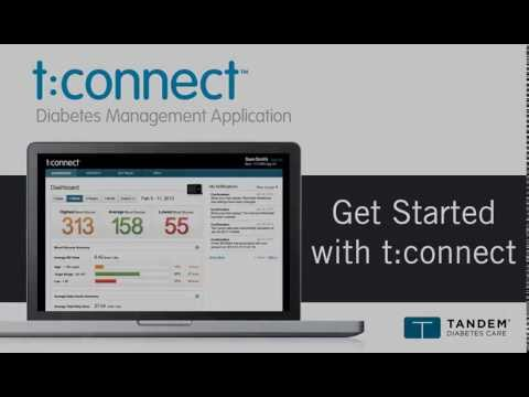 How to Install & Set Up the t:connect Application