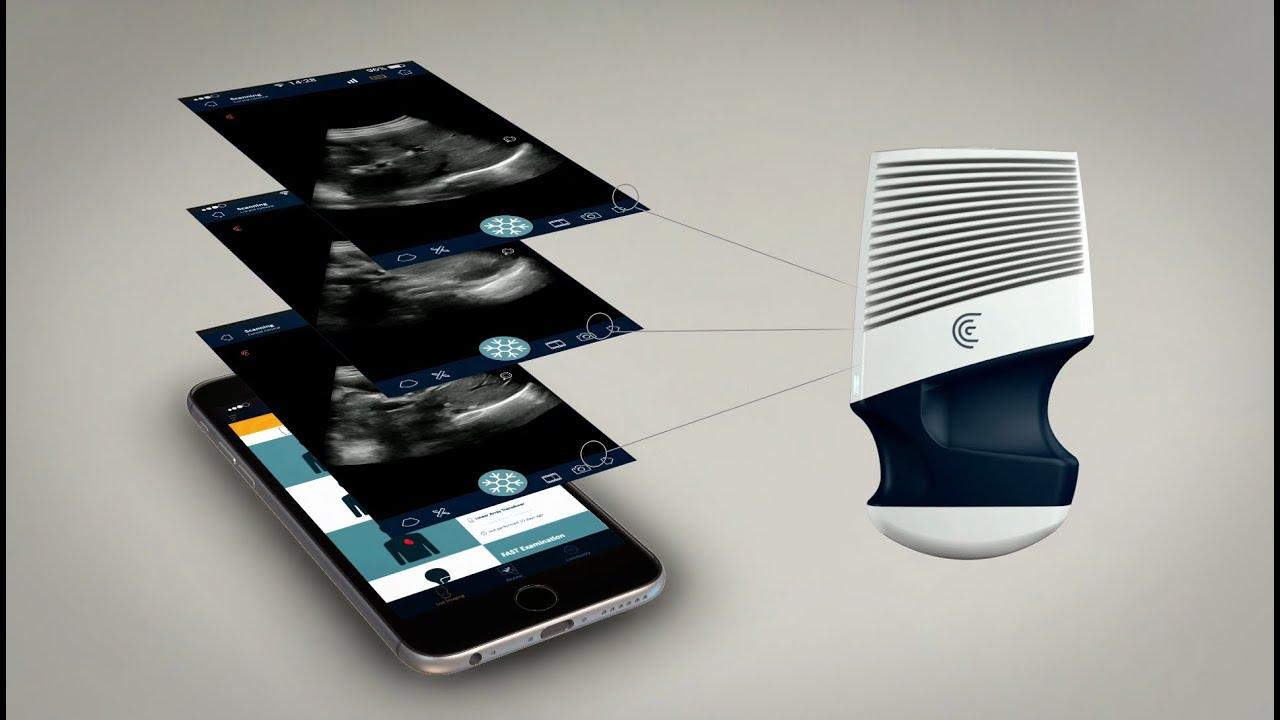 Clarius: Revolutionary Wireless Ultrasound Scanner