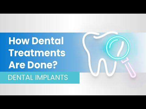 How Dental Implants Work? I Clinic Center Turkey