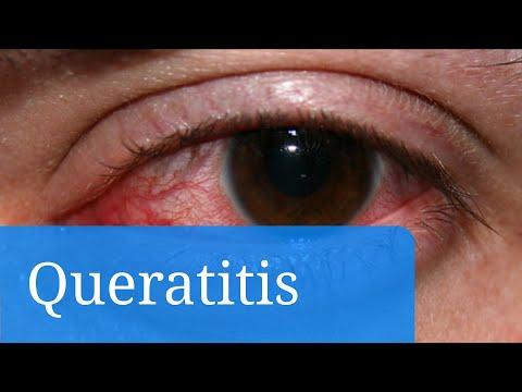 Queratitis. Causas y tratamiento de inflamación de la córnea