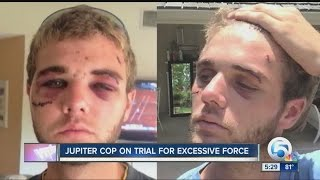 Jupiter officer on trial for aggravated battery