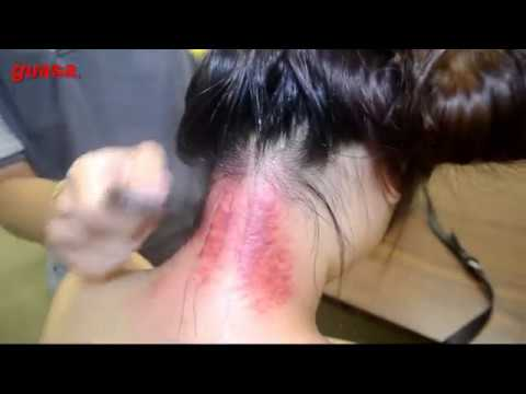 Fun & Healthy with Gua Sha Therapy