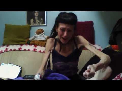 Anorexia nervosa: a mistaken diagnosis