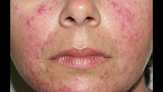 CAUSES OF ACNE ROSACEA OR ADULT ACNE AND ITS HOMEOPATHY TREATMENT