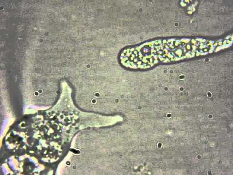 Amoeba limax