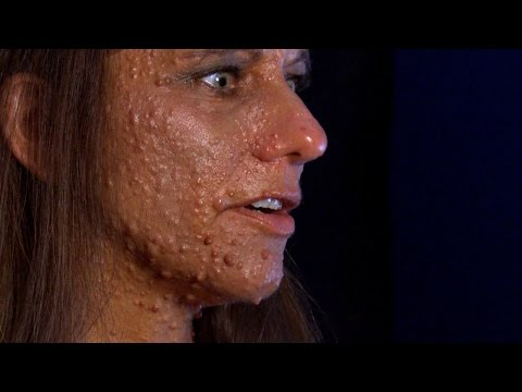"Woman Covered In Tumors; ""Ouch"" Face = ""O"" Face; Can Popping Nasal Zits Kill You; The Doctors Res…"