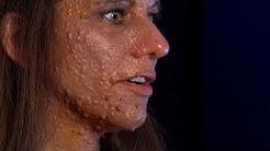 hqdefault - Face Growths Like Pimples