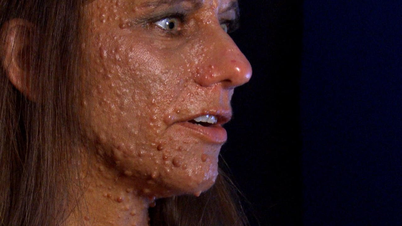 Woman Covered In Tumors Ouch Face O Face Can Popping Nasal Zits Kill You The Doctors Res