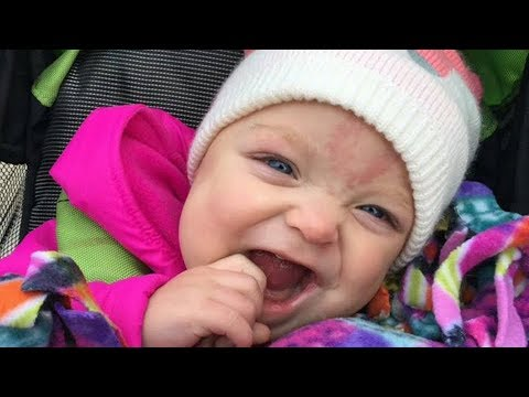Thumbnail: Baby born with ADULT sized tongue has Beckwith Wiedemann Syndrome can finally SMILE