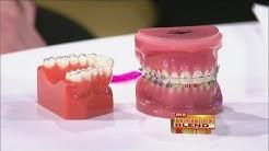 The 101 on Orthodontics
