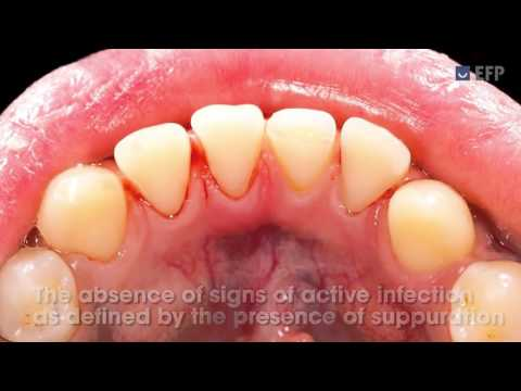 Managing complications of gingival and periodontal diseases - professional mechanical plaque control