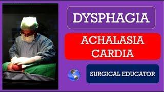 Treatment of Achalasia.