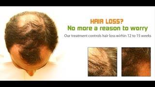 Male Pattern Baldness Hair Regrowth | Alopecia Vitamins Hair Loss Solutions