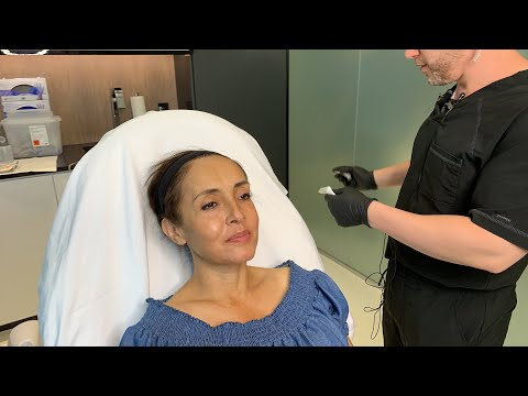 Sculptra Injections for Facial Rejuvenation | West Hollywood, CA | Dr. Jason Emer