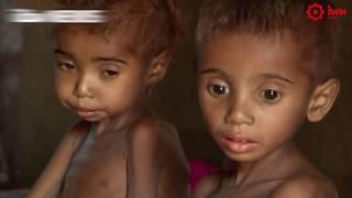 В Йемене из-за конфликта погибли или пострадали 5 тыс. детей. Новости от 18.01.2018