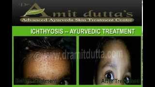 Ayurvedic Treatment for Ichthyosis Vulgaris at Jalandhar , Punjab , India- Dr. Amit Dutta