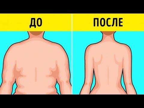 5 Продуктов, от Которых Нужно Отказаться, Чтобы Похудеть