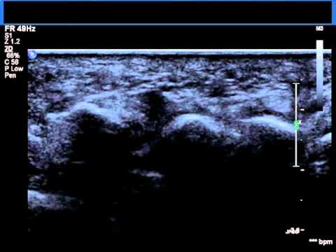 foot pathology ultrasound