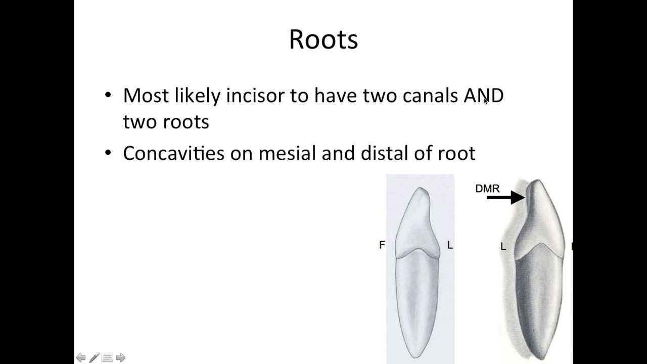 5 Mandibular Lateral Incisors - NBDE Part 1 Boards Study