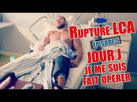 RUPTURE LCA - [ÉPISODE 5] L'OPÉRATION (JOUR J)