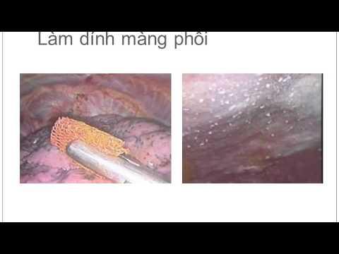 20110425 Tràn khí màng phổi
