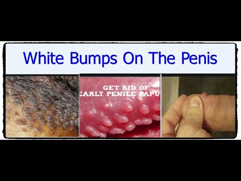 On shaft of penile to rid spots get white Penile Bumps