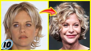 Gambar cover Top 10 Celebrities Who Were Shamed For Getting Plastic Surgery