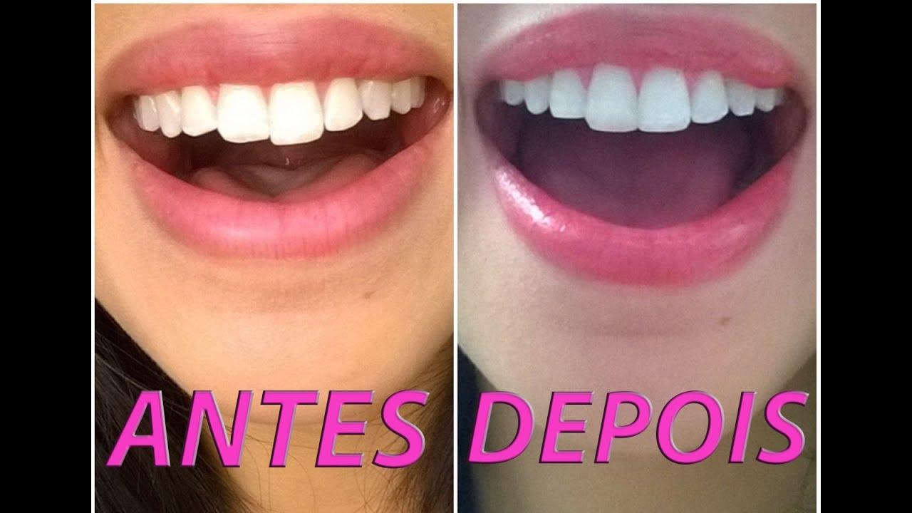 Resina Nos Dentes E Dentista Famoso Youtube