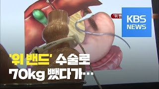 [뉴스 따라잡기] '위 밴드' 수술로 7…