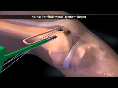 Medial Patellofemoral Ligament Repair Youtube