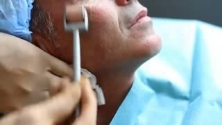 Безъинекционная Мезотерапия Лица (Body Roller System)
