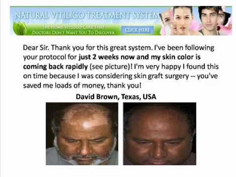 Natural Vitiligo Treatment System Review Does it work