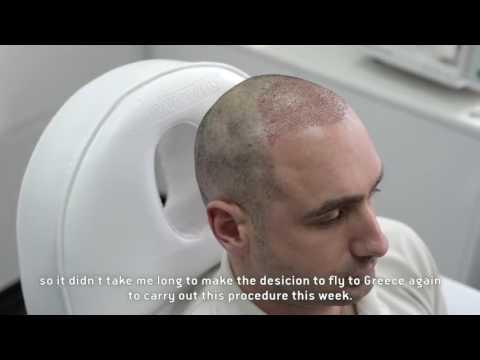 IQ FUE Hair Transplant Testimonial by Stephen Boyd