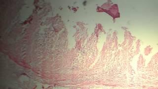 Histologia colitis ulcerosa