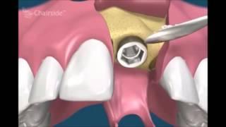 Немедленная имплантация сразу после удаление зуба  Имплантология  Стоматология