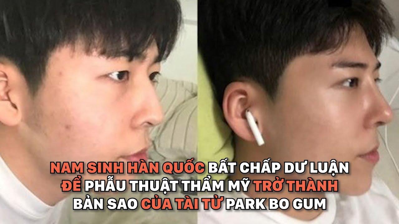 Nam sinh Hàn Quốc bất chấp dư luận phẫu thuật thẩm mỹ thành Park Bo Gum   360° Đẹp
