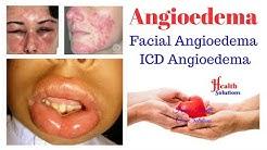 Angioedema - Facial Angioedema - ICD Angioedema