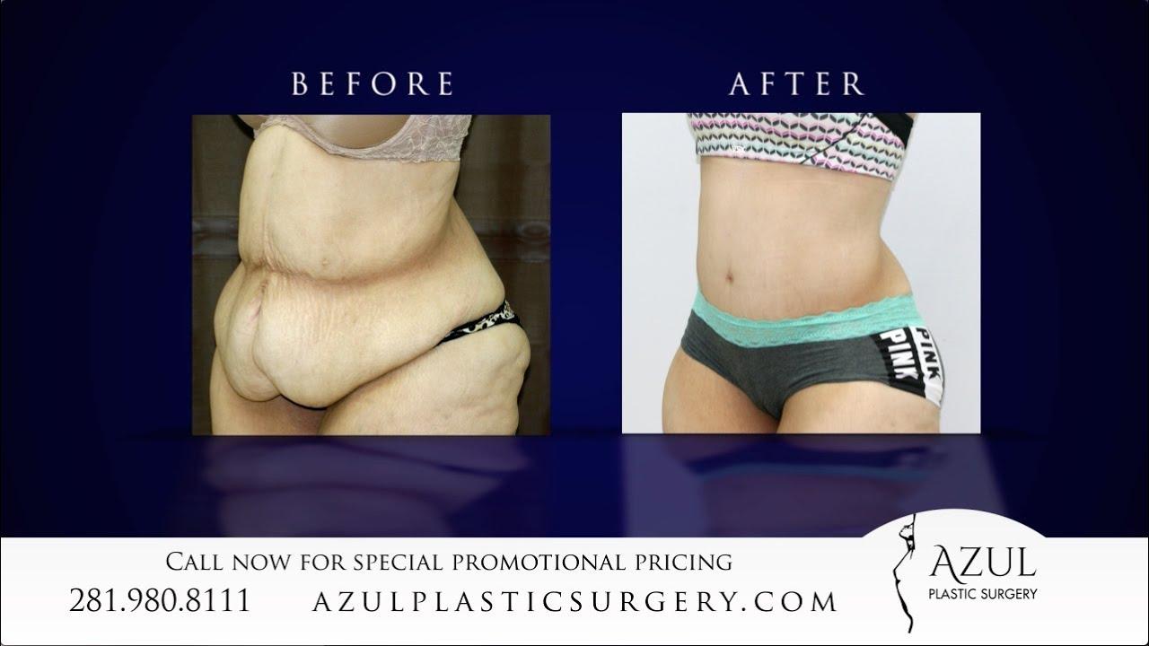 Houston Tummy Tuck after Weight Loss at Azul Plastic Surgery Sugar Land  Woodlands TX
